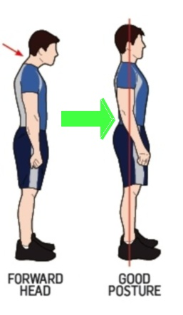 Rolled-Shoulders-Posture1